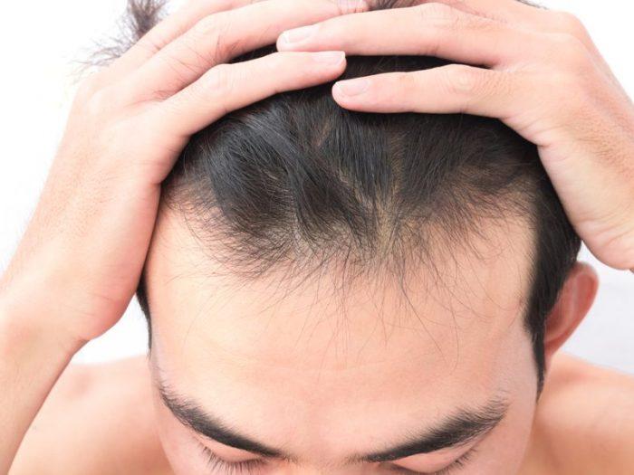 Complément capillaire ou perruque : quelle solution adopter?